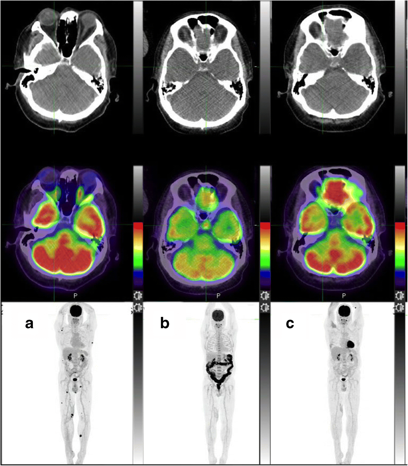 example of a ct scan