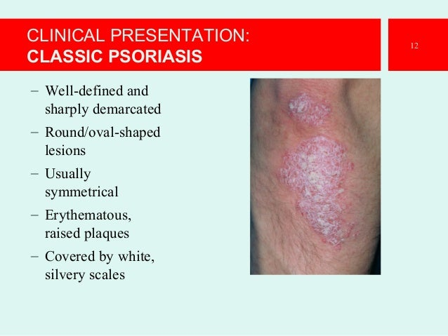 systemic infection definition and example